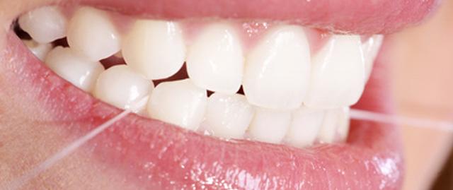 pulizia-dei-denti-verona