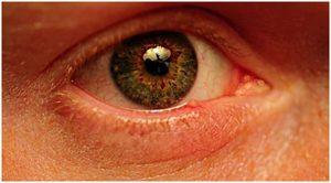 occhio-01